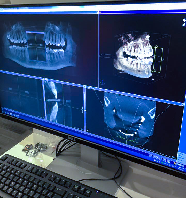 3d model of teeth